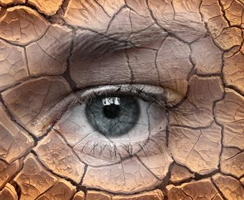 """""""Quru göz"""" sindromu nədir və necə müalicə olunur?"""
